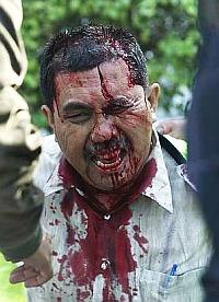 police-hurt-during-hindraf.jpg